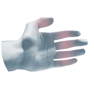 Joints of the hand