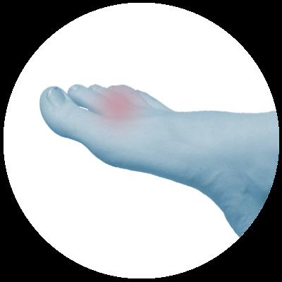 Fuß Gelenke