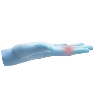 Hand Gelenk